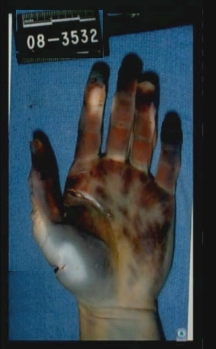 left hand defensive wound